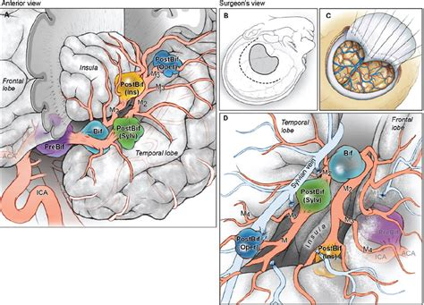 Bypass surgery for complex middle cerebral artery